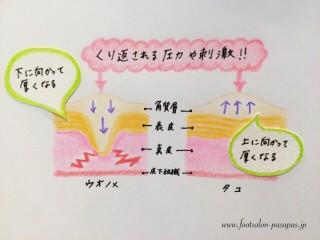 タコ・ウオノメIMG_3041